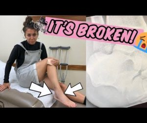 GFM Tour Vlogs 16!: SHE BROKE HER ANKLE! *actual footage*