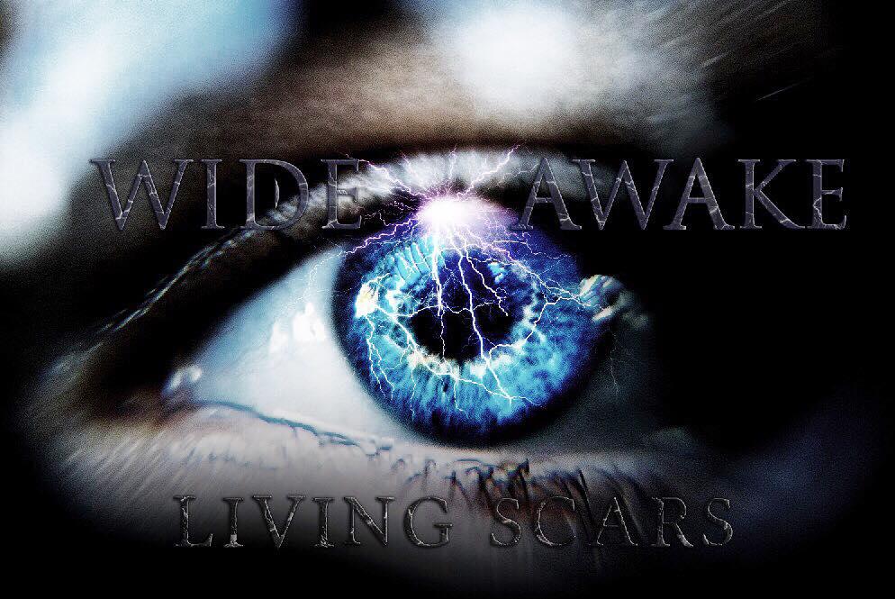 Audio: Living Scars Release Wide Awake Single